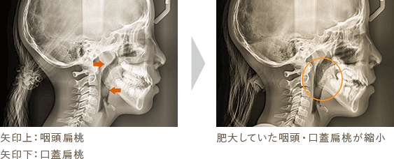 Case1 矢印上:咽頭扁桃 矢印下:口蓋扁桃 肥大していた咽頭・口蓋扁桃が縮小