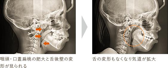 咽頭・口蓋扁桃の肥大と舌後壁の変形が見られる 舌の変形もなくなり気道が拡大