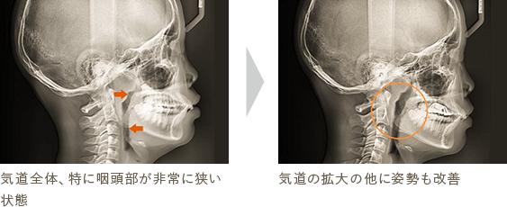 気道全体、特に咽頭部が非常に狭い状態 気道の拡大の他に姿勢も改善