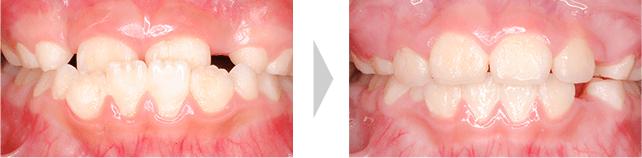 治療例 - 乳歯から永久歯に交換中