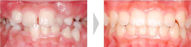 治療例 - 全ての乳歯が永久歯に交換直後