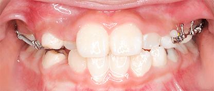 上下顎歯列