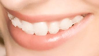 歯の色に馴染むワイヤーと併せることで表側でもほとんど目立たずに治療が可能