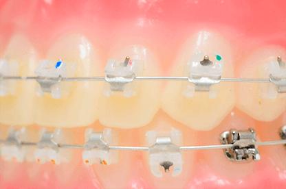 ローフリクションシステムを併用することで、個々の歯にかかる負担が少なくて済む