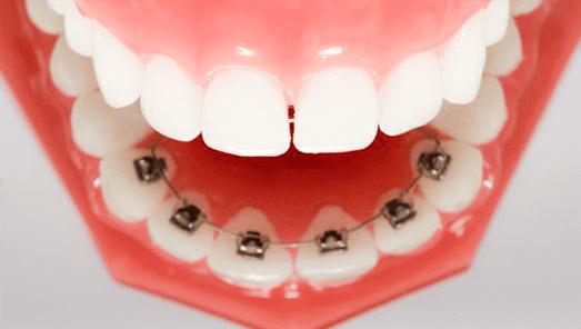 裏側の矯正治療のイメージ
