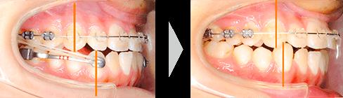 治療例② - 下顎側方歯の後方移動開始時〜3ヶ月