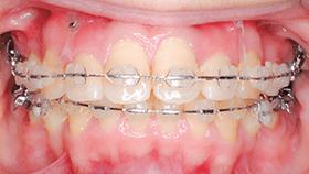 治療例② - 前歯の圧下に