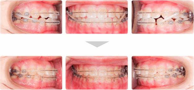 治療例 - ゴムメタルワイヤーによる治療開始時〜4ヶ月